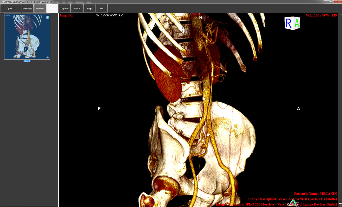 ORPALIS DICOM Viewer Free Preview 1